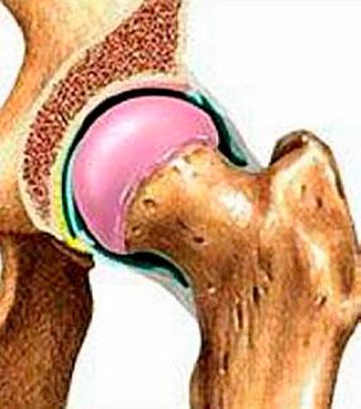 a bokaízület ízületi gyulladásának súlyosbodása