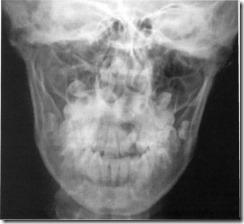 Csontok oszteoszklerózisa: a betegség tünetei, okai és kezelése - Arthritis July