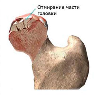 a csípőízület ízületének károsodása