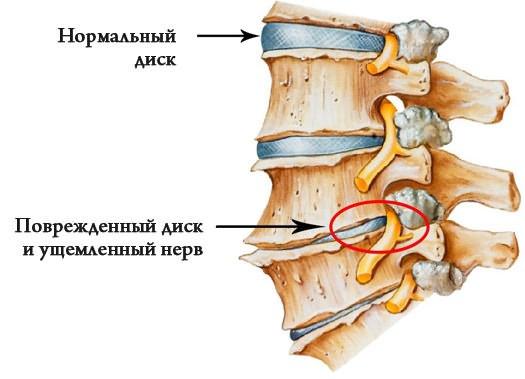 miért fáj a serdülő csípőízületei)