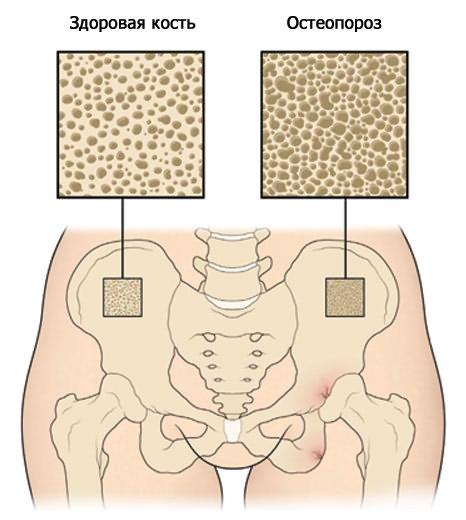 1. szakasz a csípőízület deformáló artrózisa