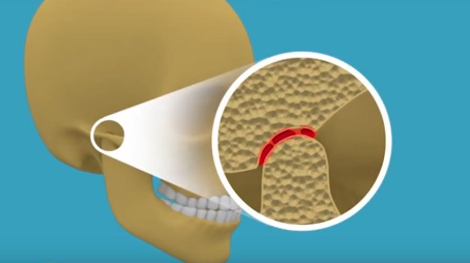 térd osteoarthrosis kezelése 3 fokkal