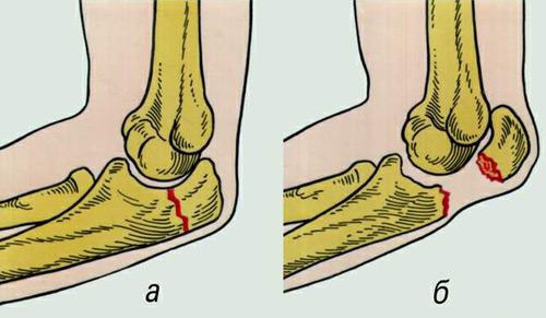 hogyan kezeljük a könyökízület törését ganglion boka kezelés