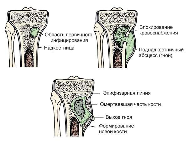 deformáló artrózis a csípőízületek 2-3 fokú