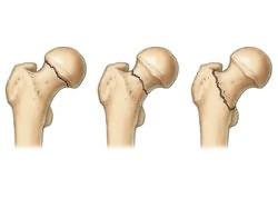 fájdalom súlyosbodása a csípőízületben)