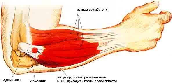 a bokaízület 1. szakaszának deformáló artrózisa