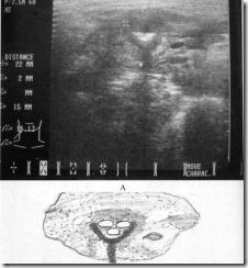 térdízület röntgenfelvételei)