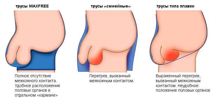 po tiesiosios žarnos erekcijos operacijos dingo jei turite silpną erekciją, kaip sujaudinti vyrą